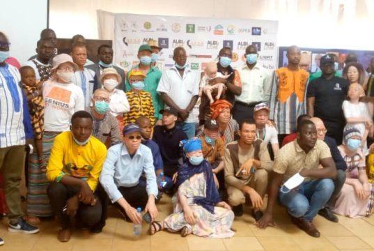 Burkina Albinos Slamazone