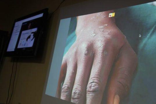 Santé Burkina Faso Téléconsultation